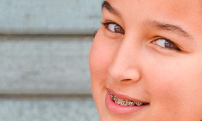 Apparecchio per i denti, è sempre vero che è più utile da bambini?